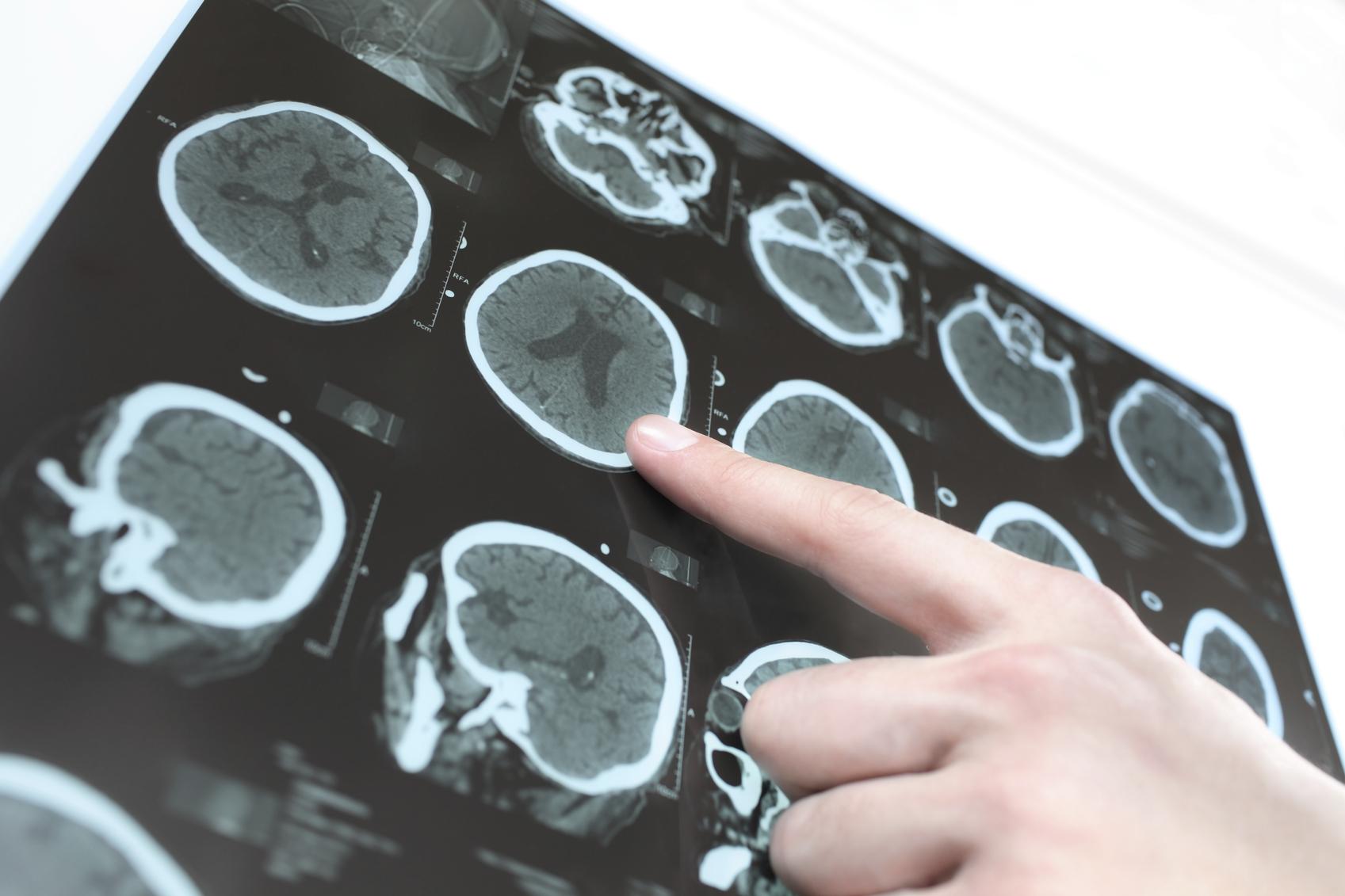 Alzheimer: sintomi, cause, diagnosi e cure