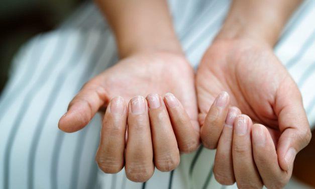 Macchie bianche sulle unghie, cause e rimedi
