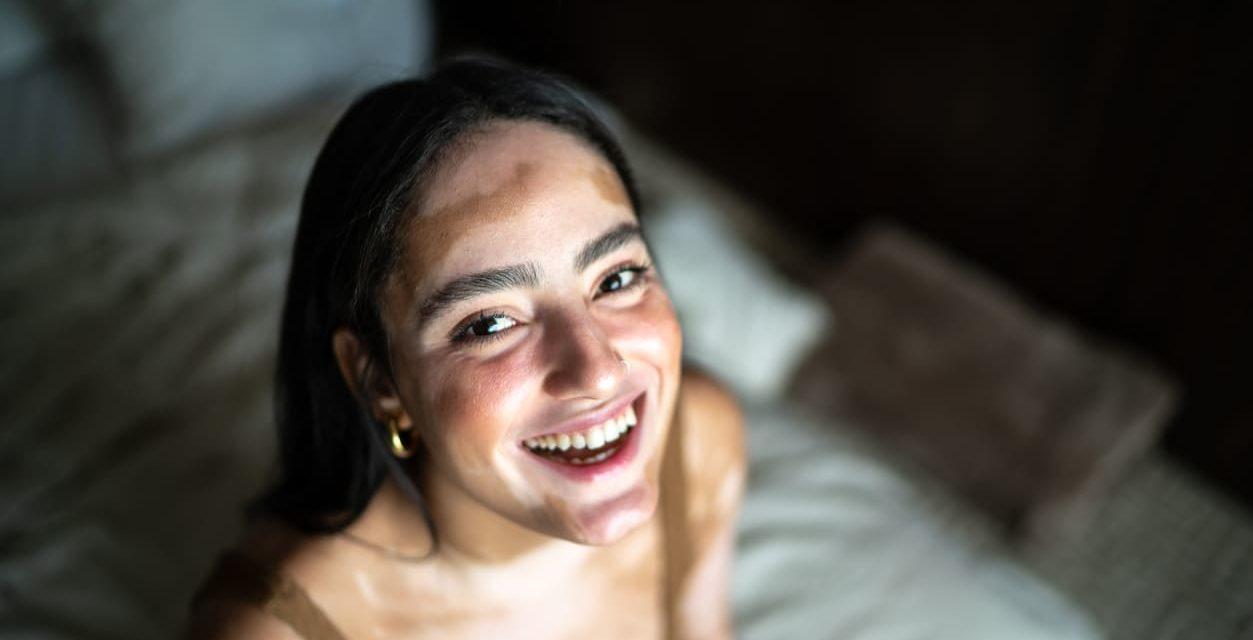 Vitiligine: cause, diagnosi e cure efficaci