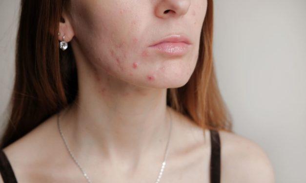 Tutto quello che c'è da sapere sull'acne e i rimedi efficaci